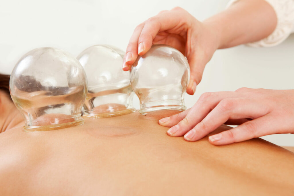 acupuncture therapist removing a glass globe